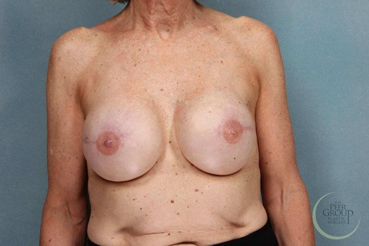 Breast Reconstruction NJ After Staged Reconstruction