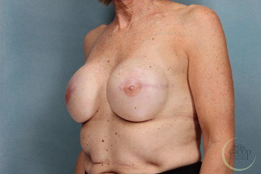NJ Breast Reconstruction After Staged Reconstruction