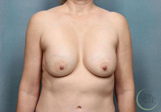 Breast Implant Revision NJ Before