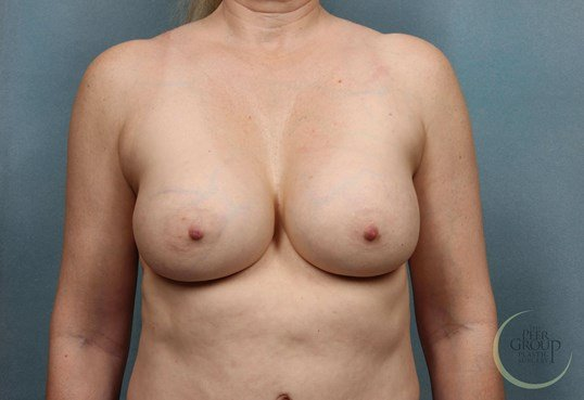 Breast Implant Revision NJ After