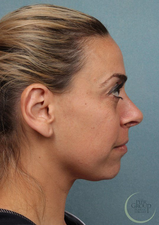 Morris County Rhinoplasty Rhinoplasty 6 Months After