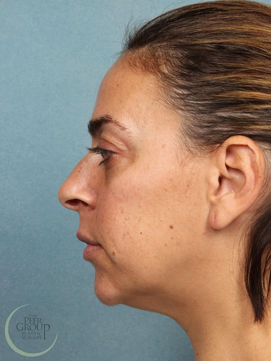 Nose Surgery Morristown NJ Before Rhinoplast