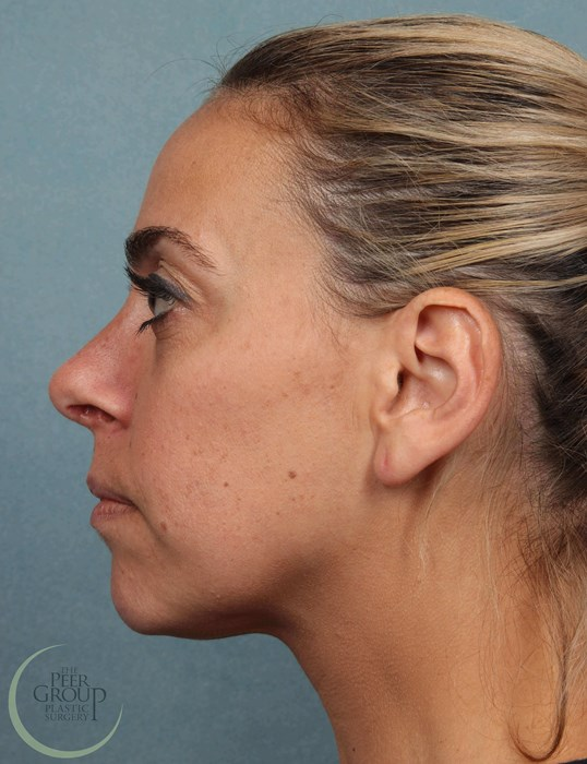 Nose Surgery Morristown NJ 6  Months After Rhinoplasty