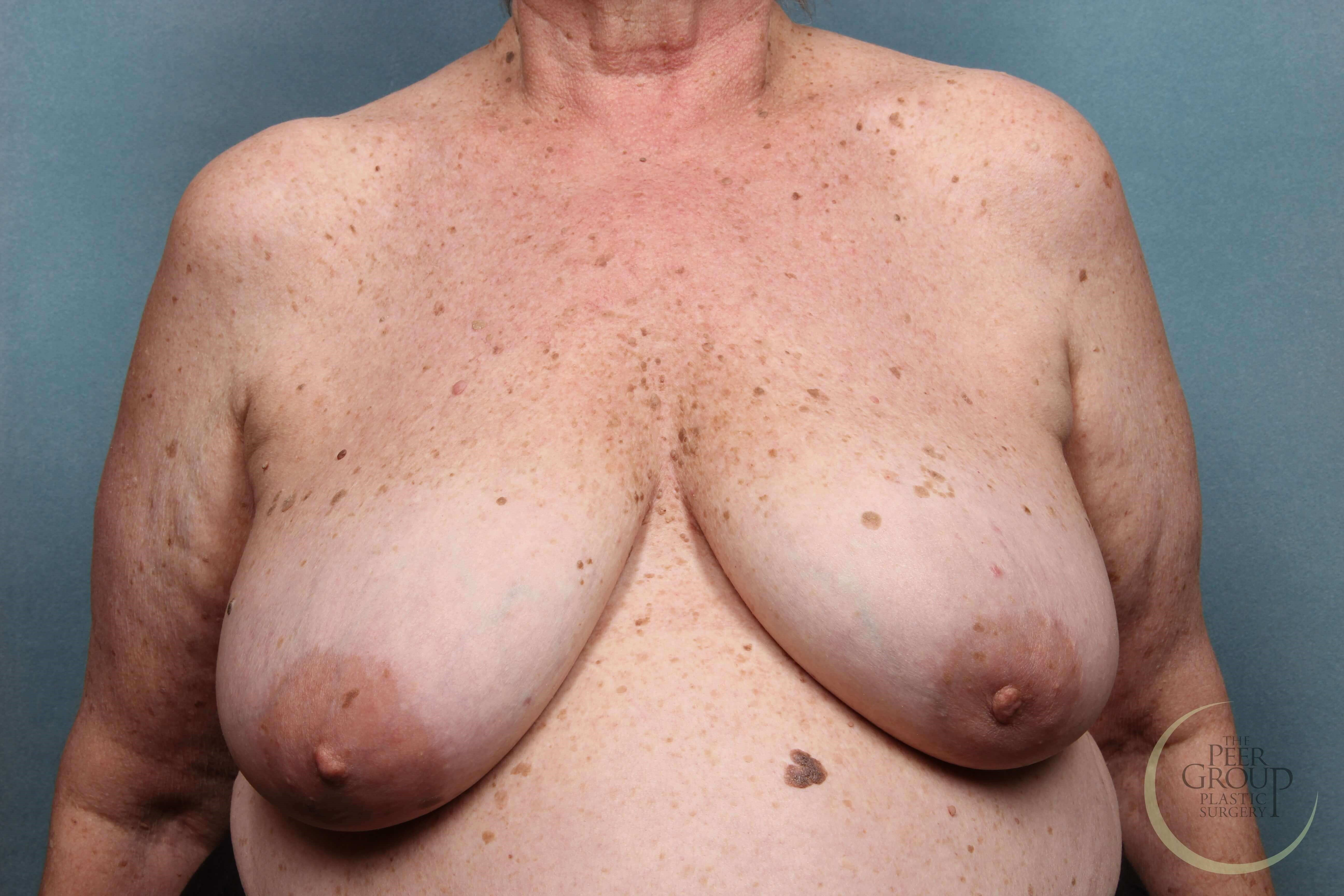 Breast Reconstruction NJ Before