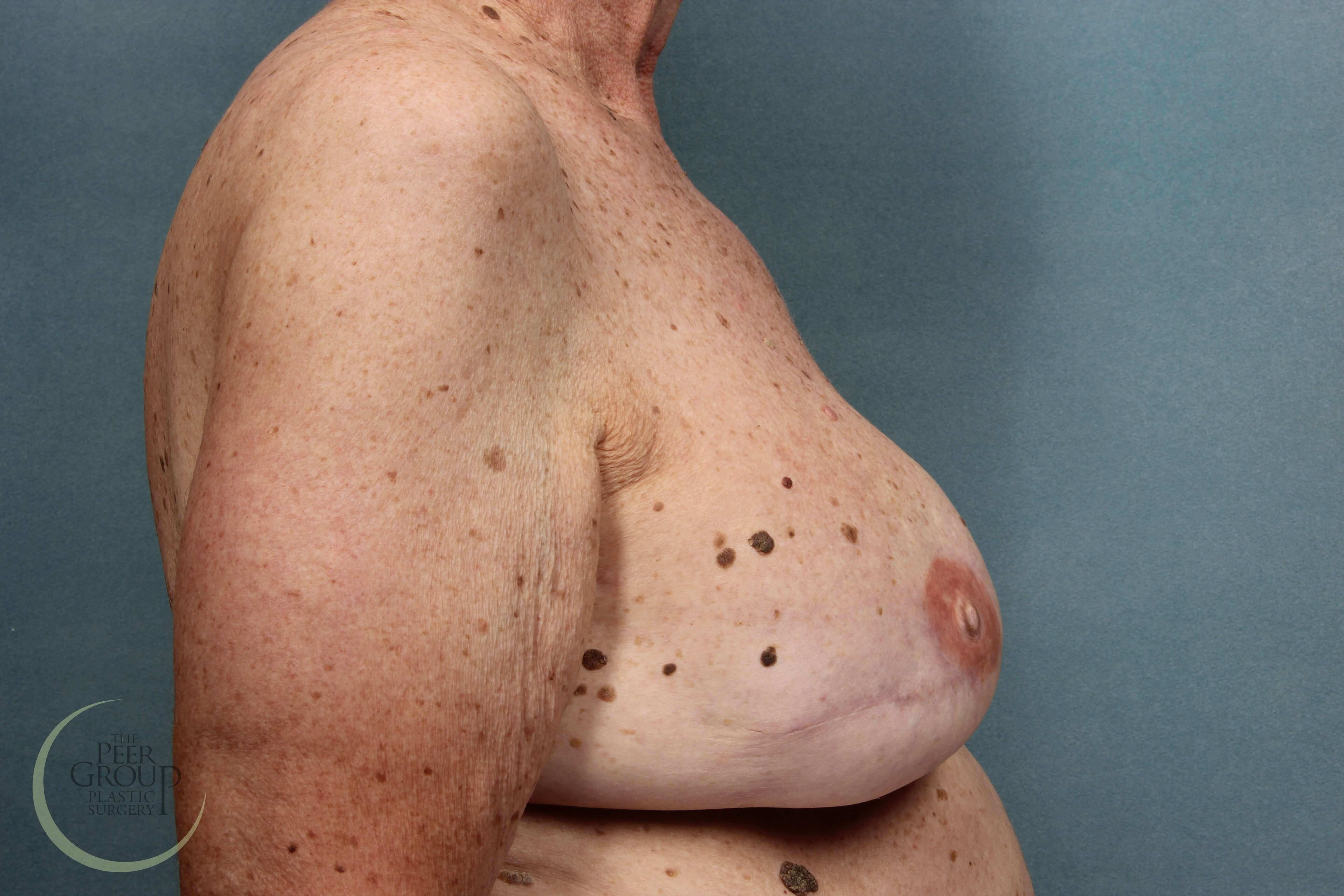 NJ Breast Reconstruction After