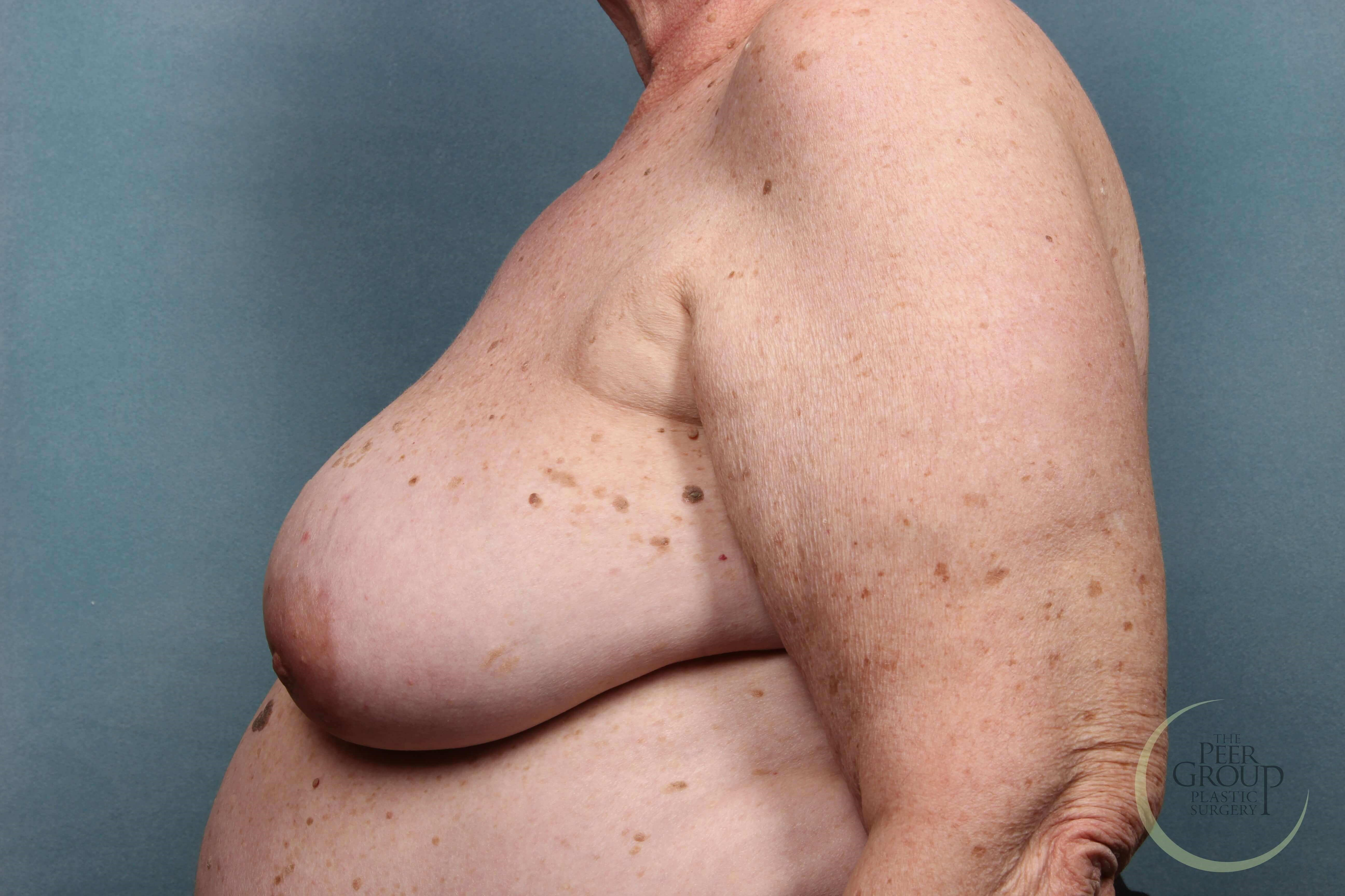 Breast Reconstruction Staged Before