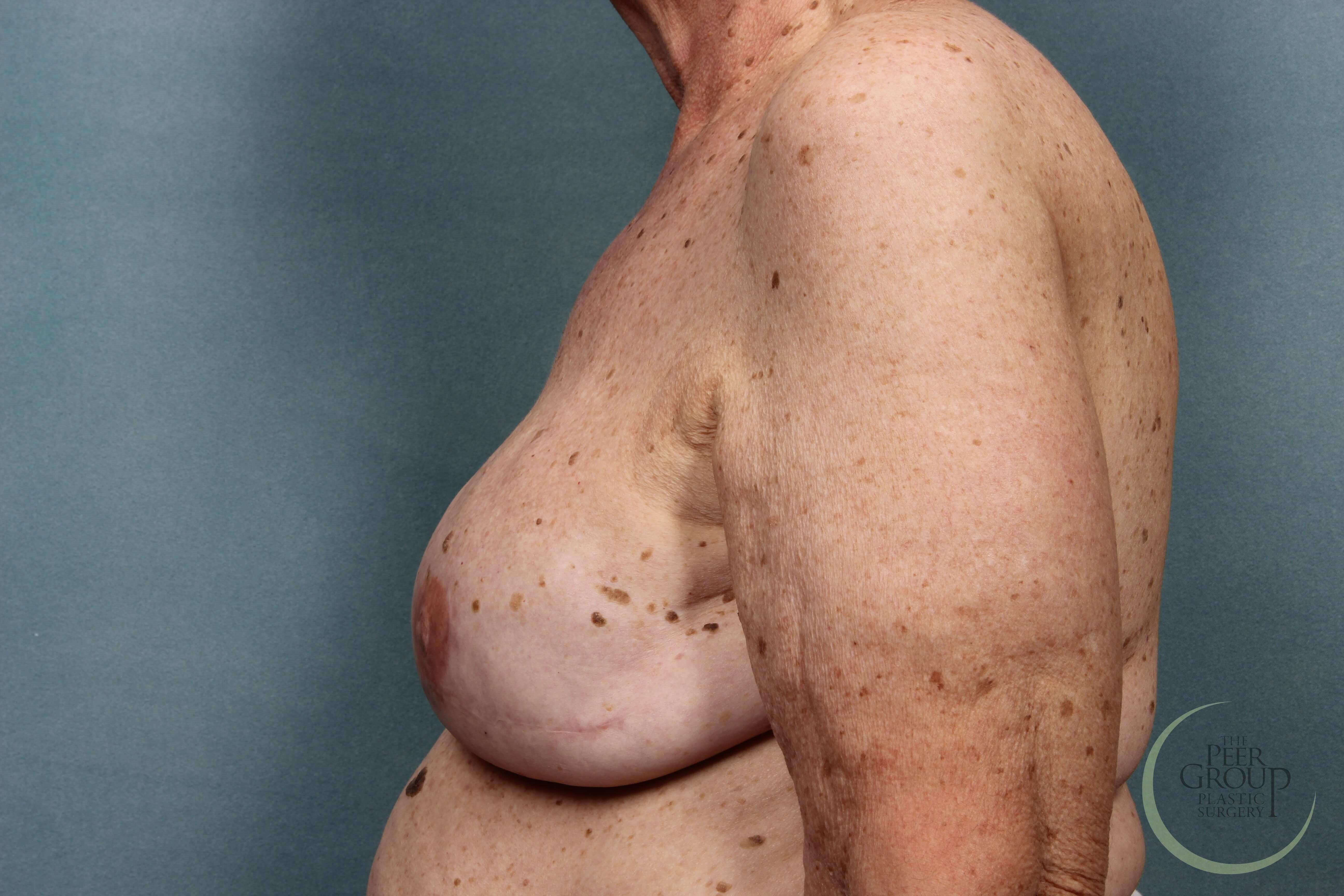 Breast Reconstruction Staged After