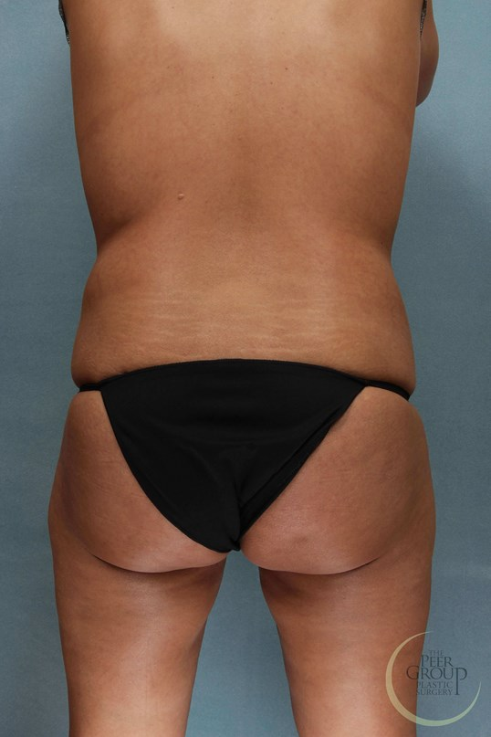 Morris County NJ Liposuction Before