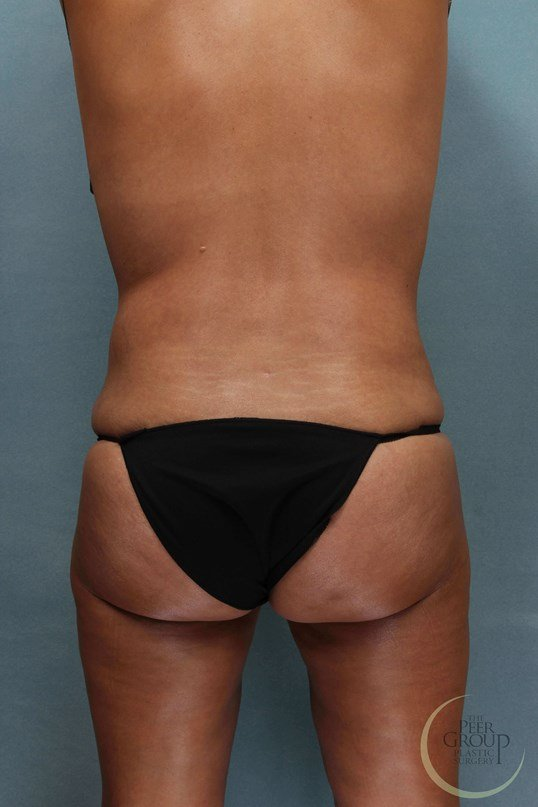 Morris County NJ Liposuction After