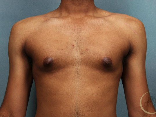 Male Breast Reduction NJ Before