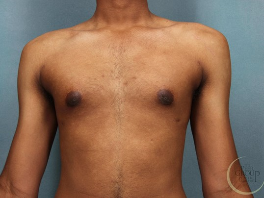 Male Breast Reduction NJ After
