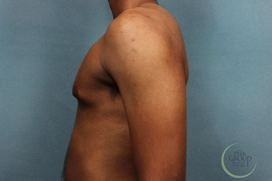 Gynecomastia New Jersey Before