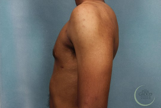 Gynecomastia New Jersey After