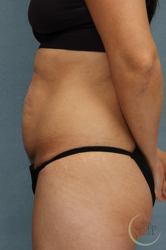 Tummy Tuck New Jersey Before