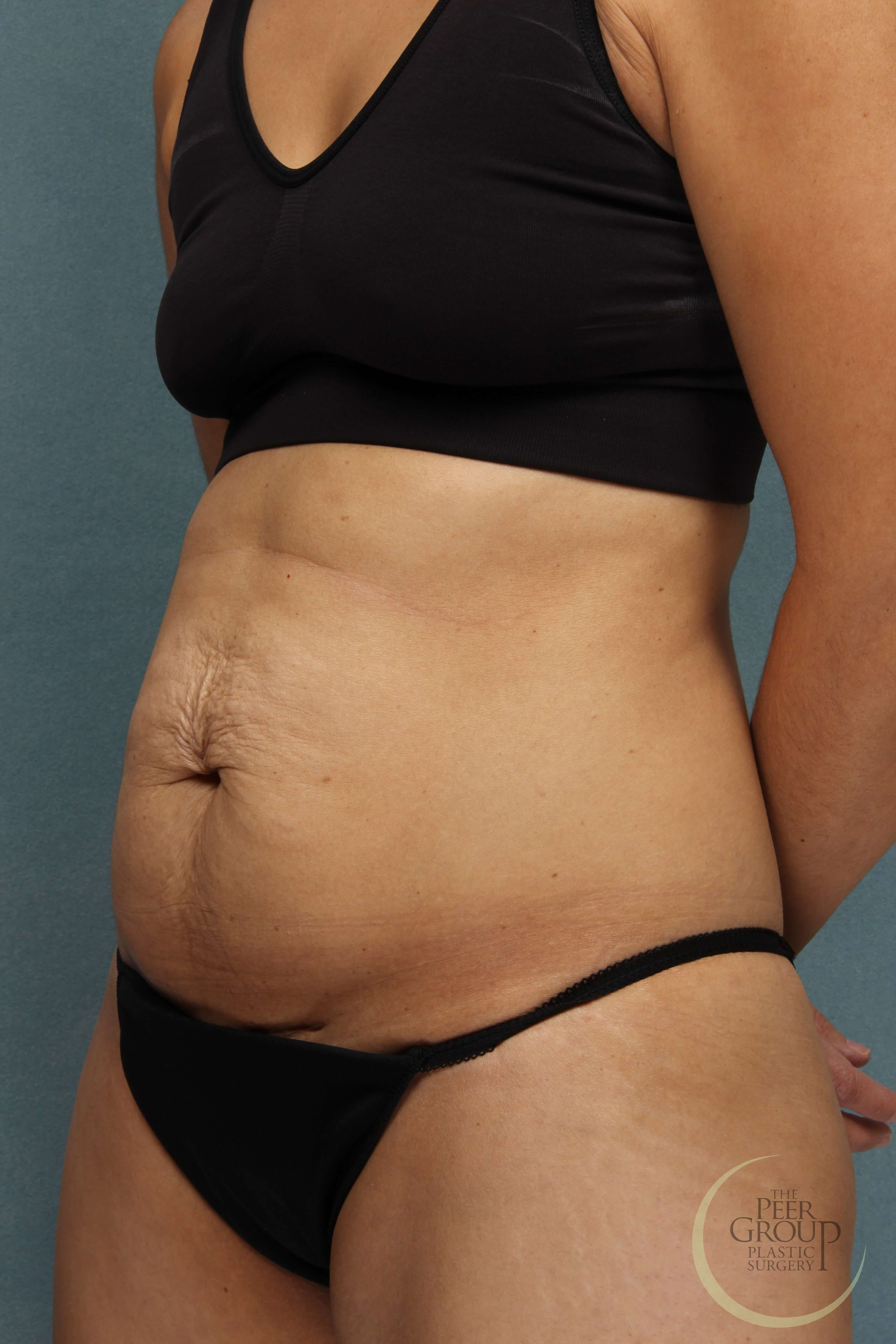Tummy Tuck Essex County NJ Before