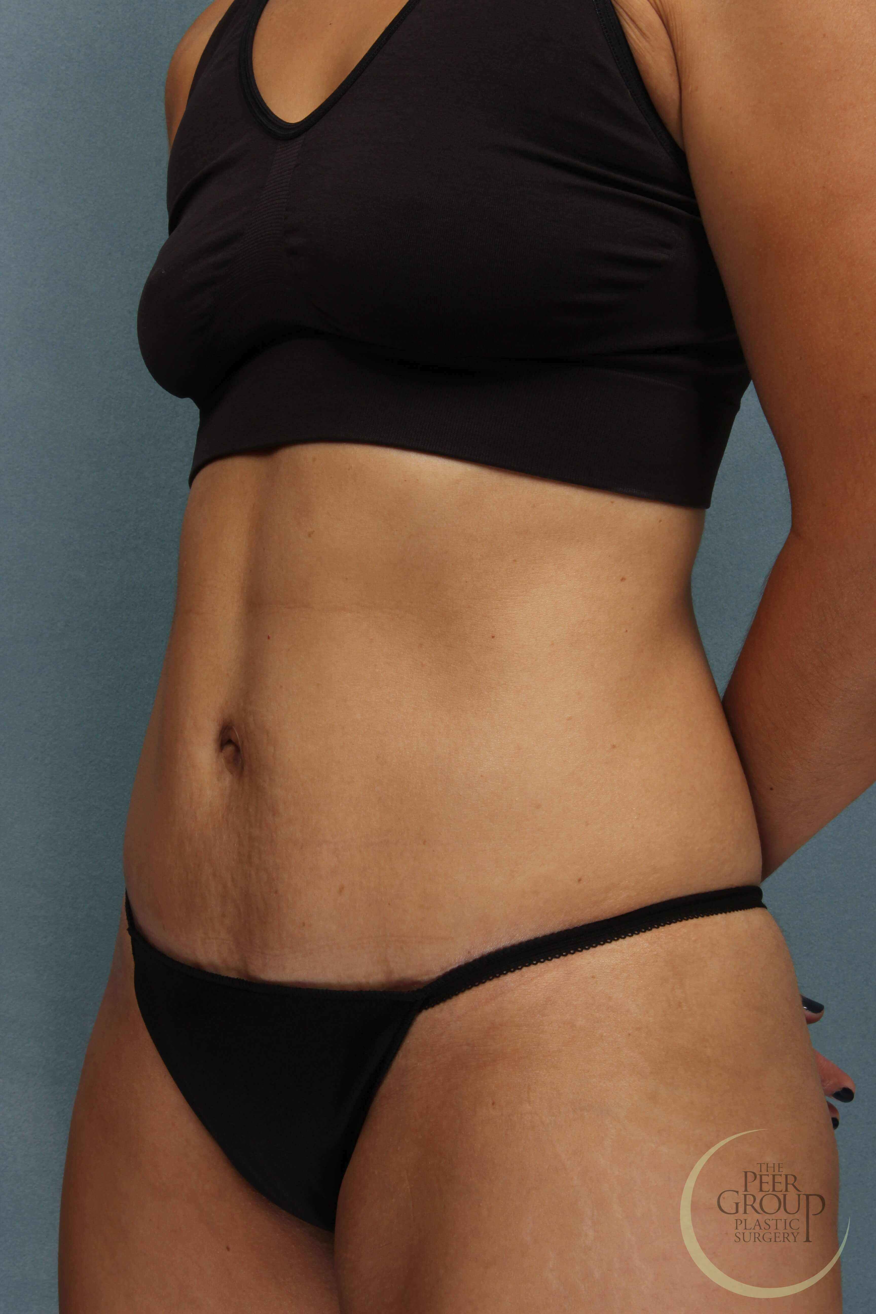 Tummy Tuck Essex County NJ After