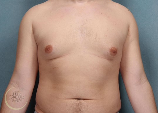 NJ Male Breast Reduction Before
