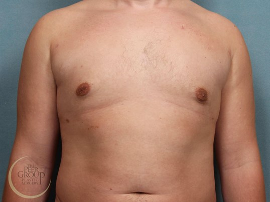 NJ Male Breast Reduction After
