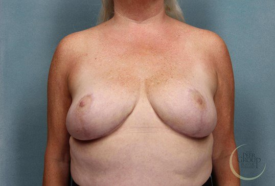 Breast Reduction New Jersey After