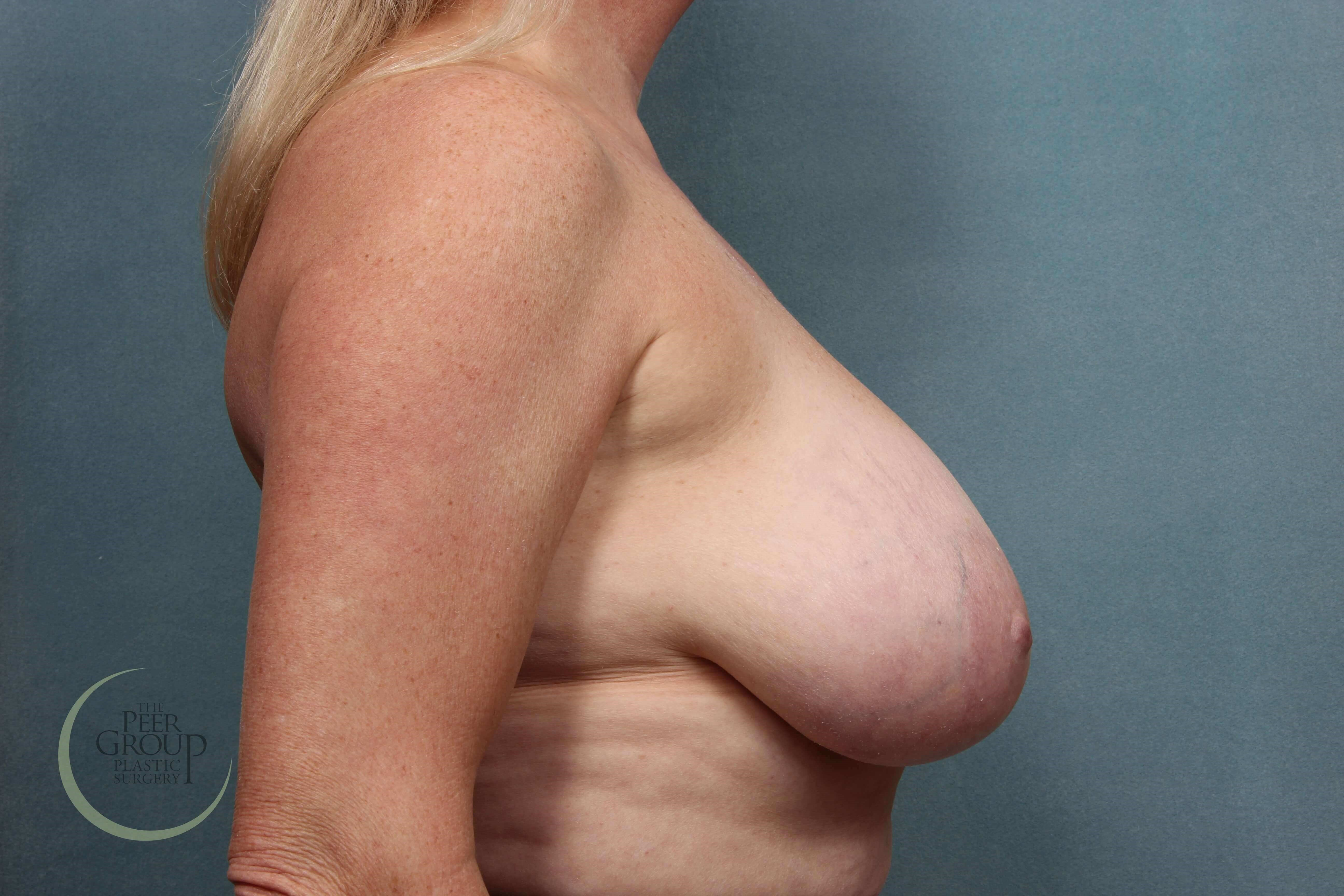 Breast Reduction Morristown NJ Before