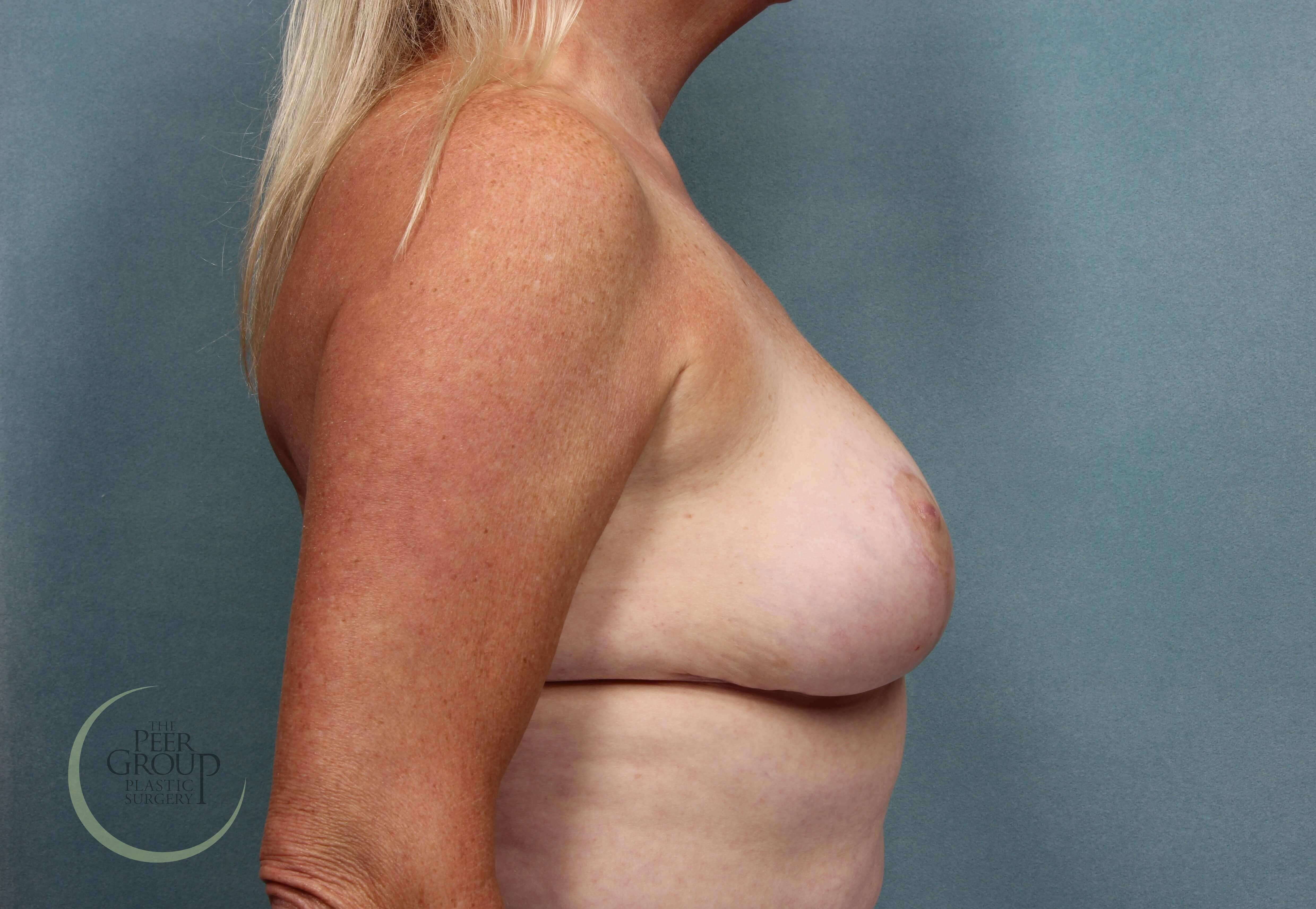 Breast Reduction Morristown NJ After