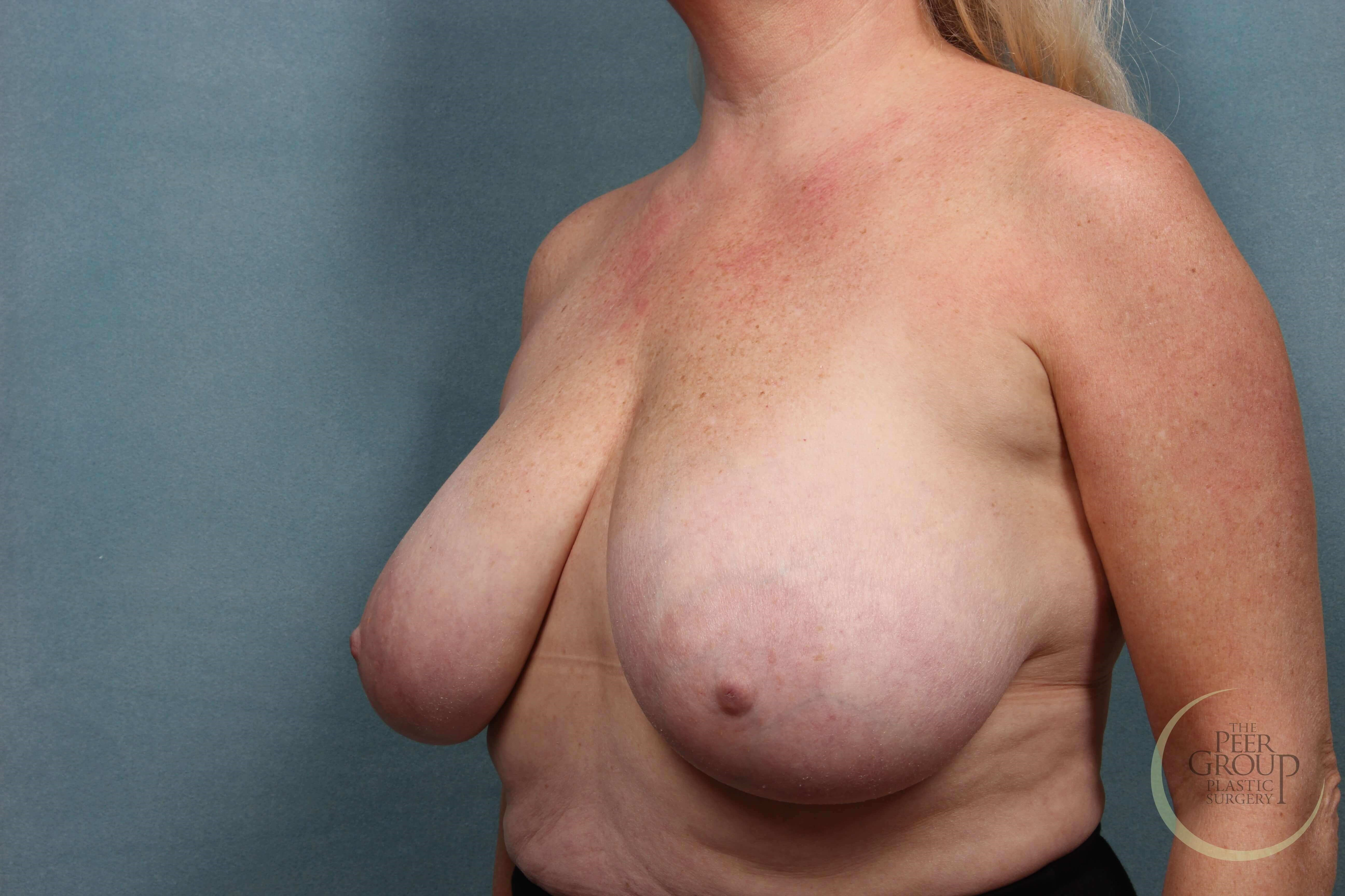 Morristown NJ Breast Reduction Before