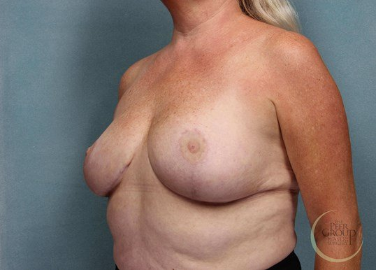 Morristown NJ Breast Reduction After