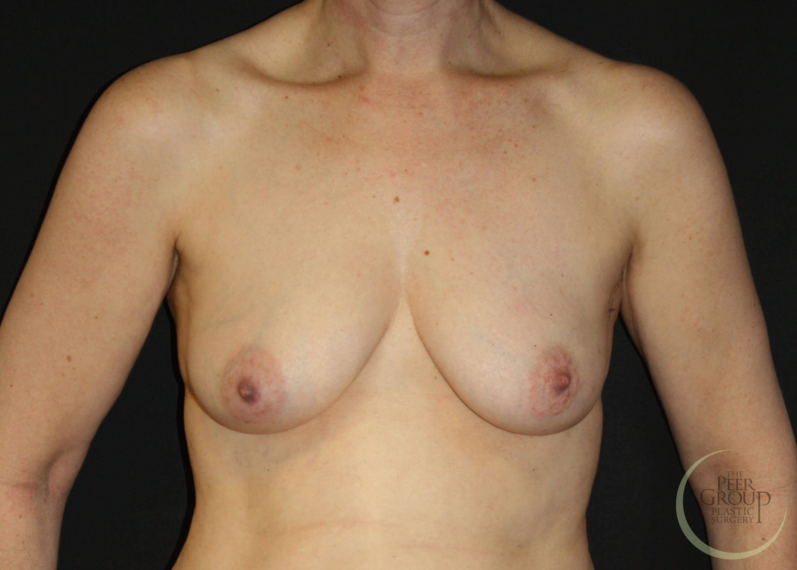 DIEP Breast Reconstruction NJ Before