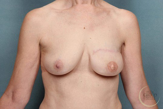 DIEP Breast Reconstruction NJ After