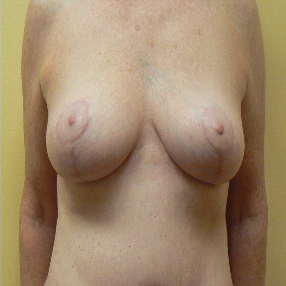 Restoring a youthful breast After