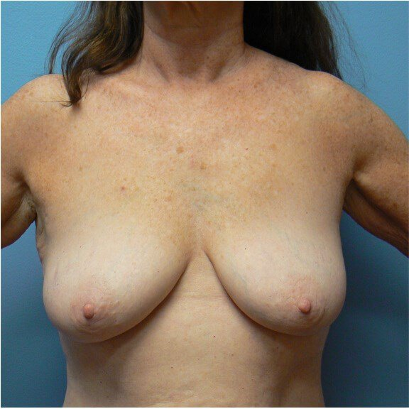 Restoring a youthful breast Before