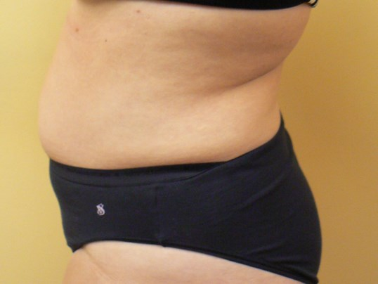 Right Side After