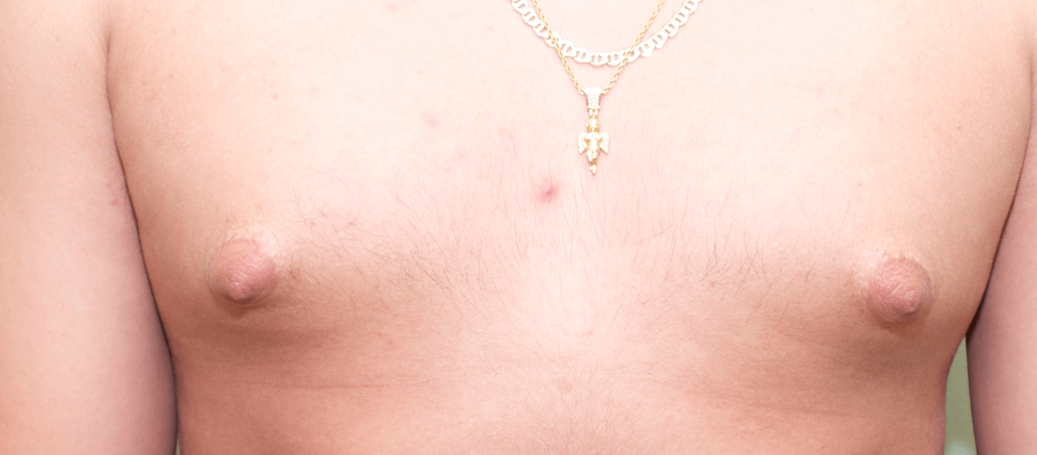 Gynecomastia Frontal View Before