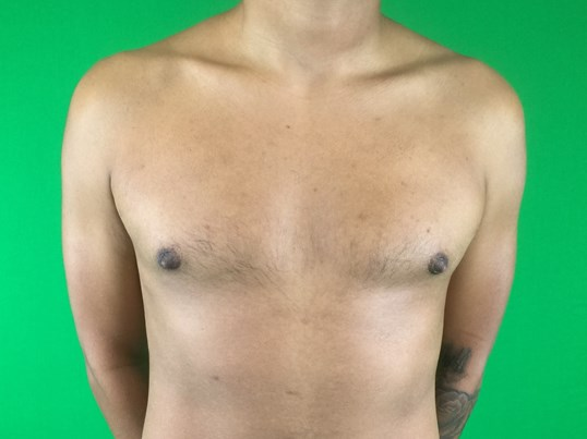 Gynecomastia Frontal View After