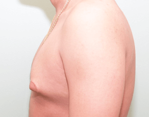 Gynecomastia Lateral Before