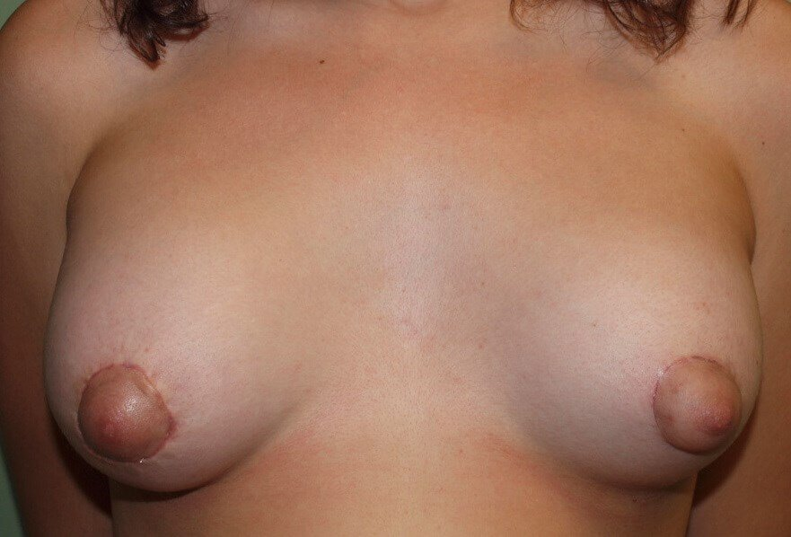 Tuberous Breasts After