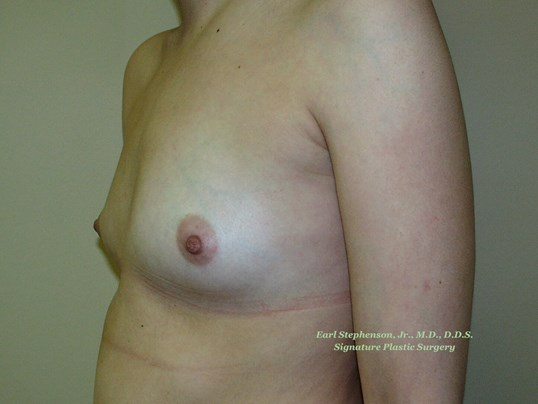 400 cc High Profile Implants Before