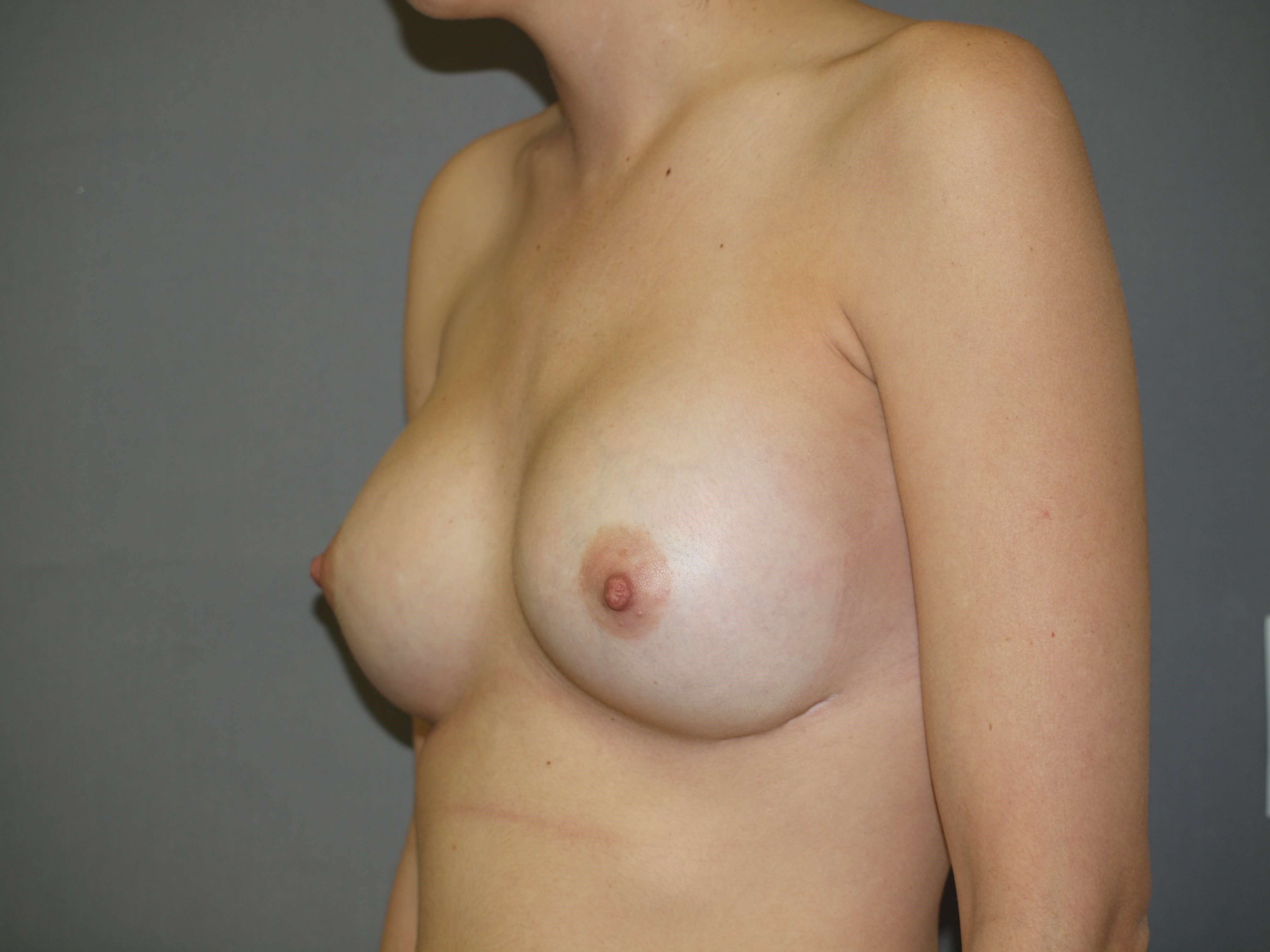 400 cc High Profile Implants After