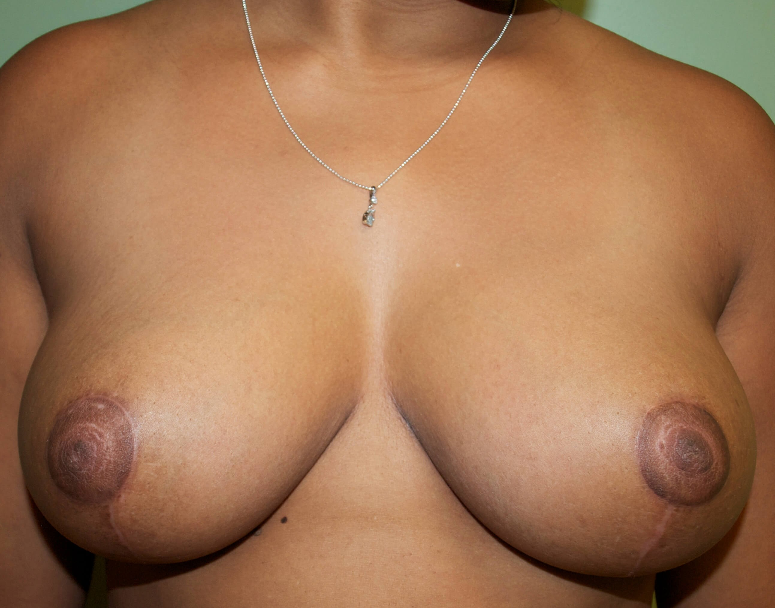 Large Breasts After