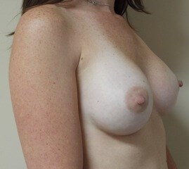 Natural Breast Augmentation After