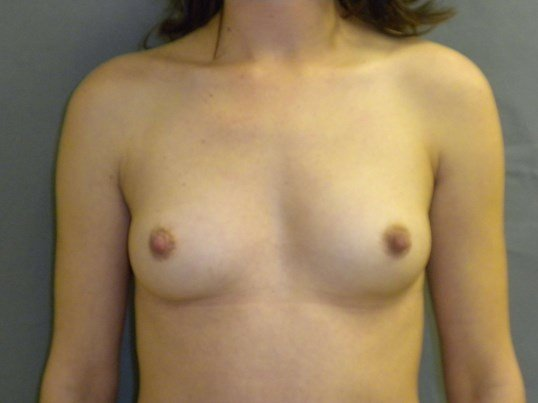 Shapely Silicone Implants Before