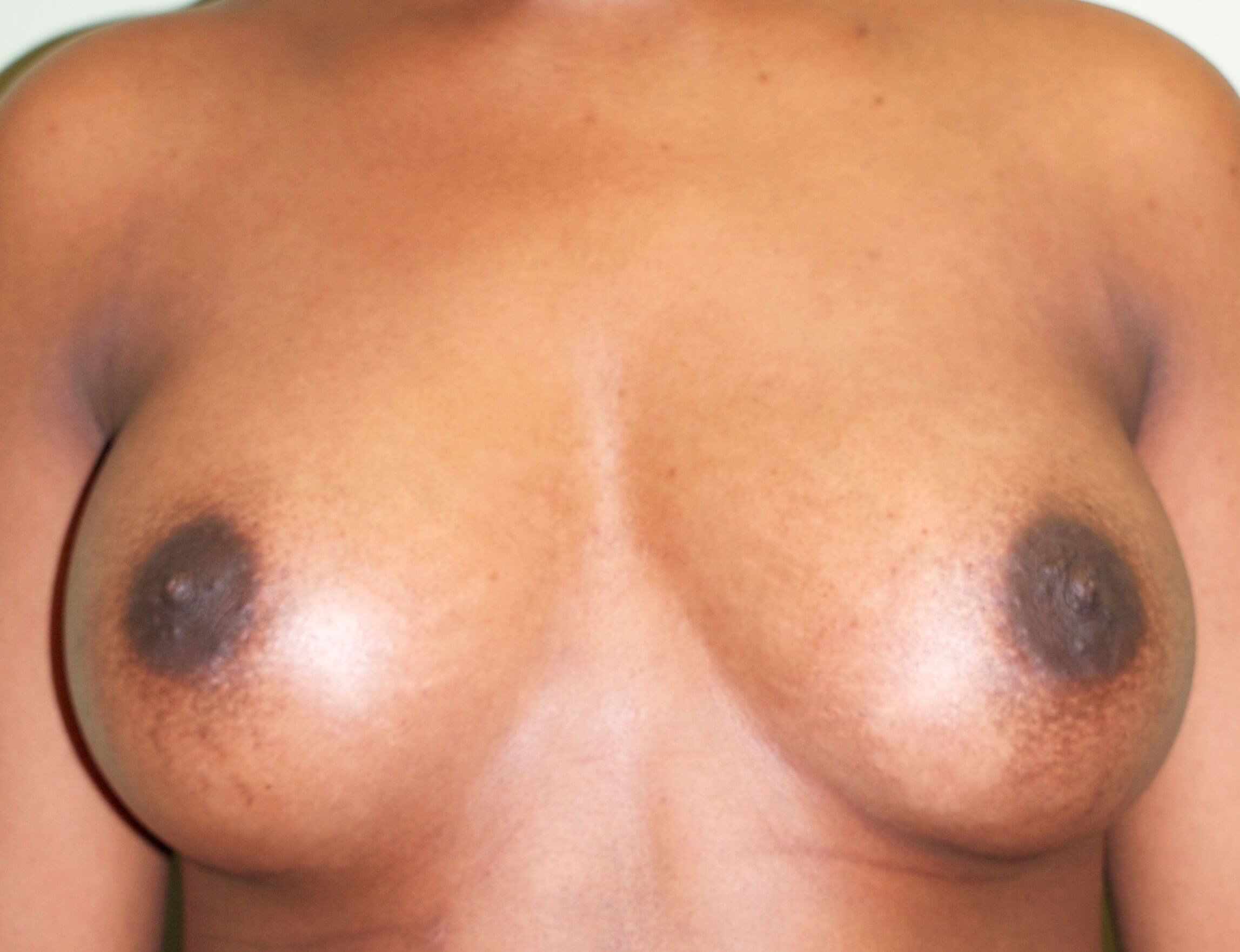 Saline Implants/Frontal View After