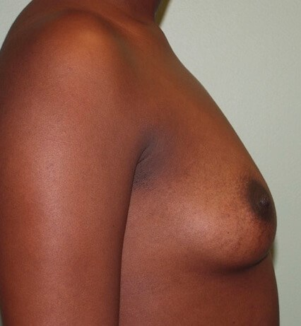 Saline Implants/Side View Before