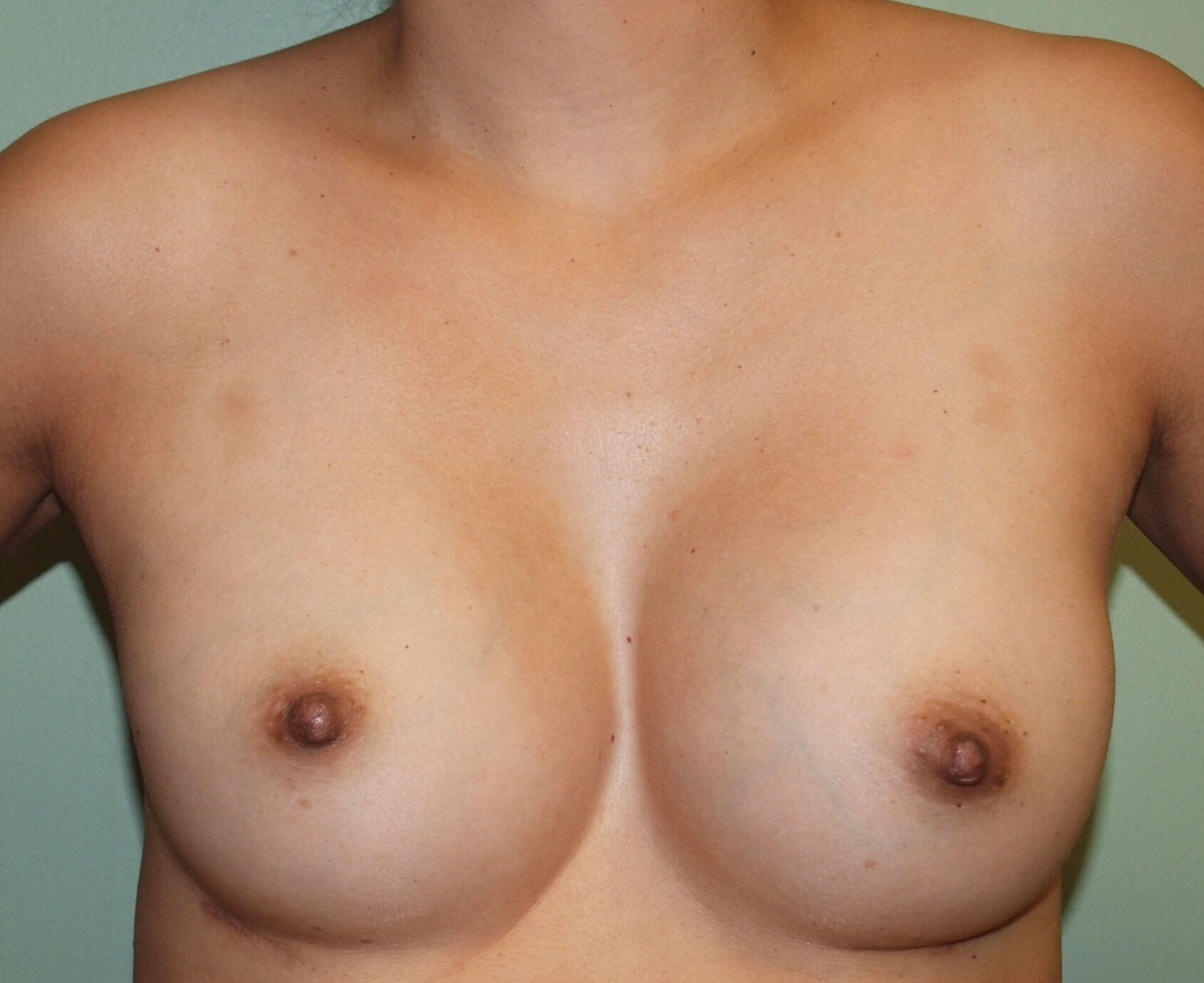 Asymmetry & Silicone Implants After