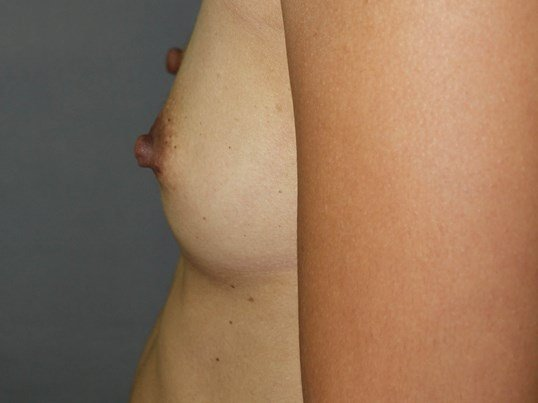 Asymmetry & Silicone Implants Before