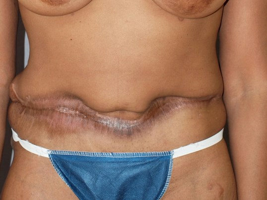 Tummy Tuck Corrects Scar Before