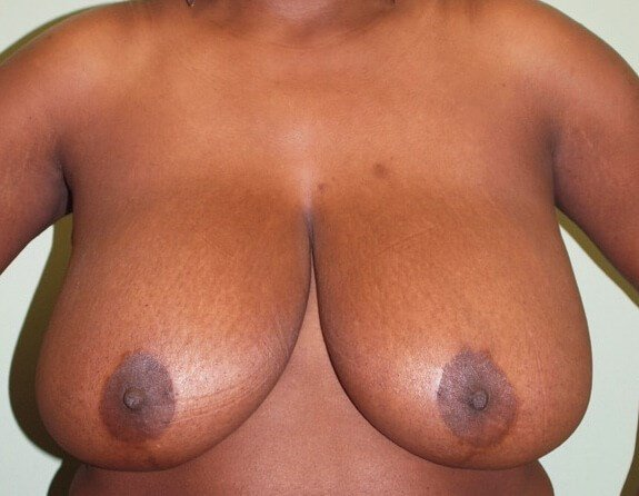 Large and Droopy Breasts Before