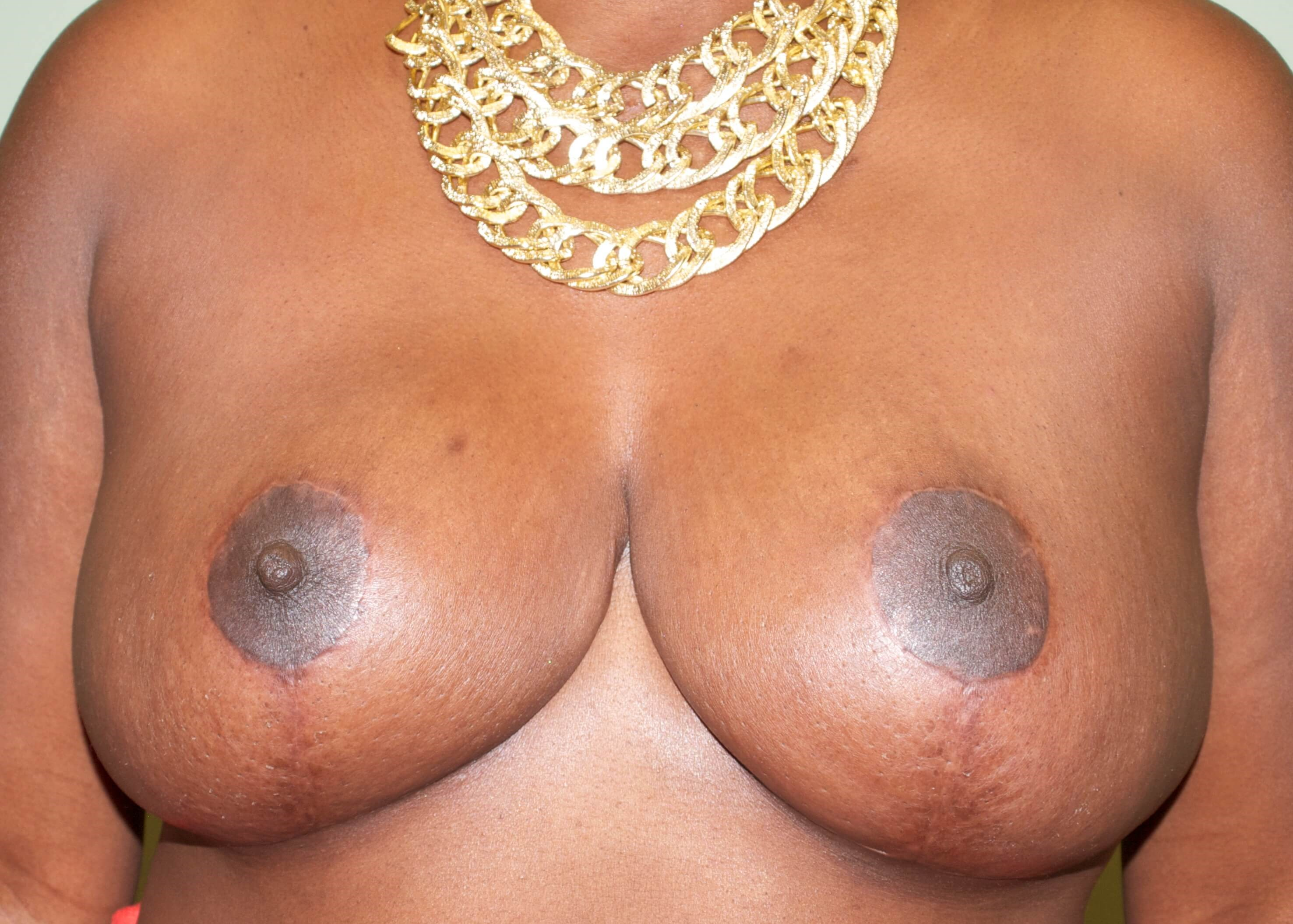 Large and Droopy Breasts After