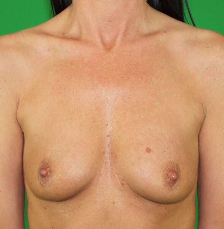 Breast Aug Frontal Before