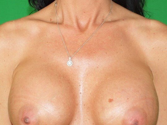 Breast Aug Frontal After